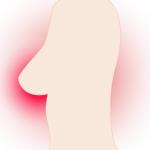 Bekymrede kvinder efter mangelfulde brystundersøgelser