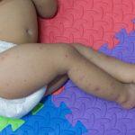 Udeluk de uvaccinerede børn